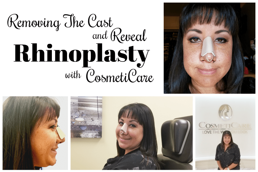Rhinoplasty: Removing The Cast And Reveal