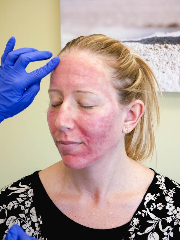 Microneedling Facial Treatment with PRP – Before and After