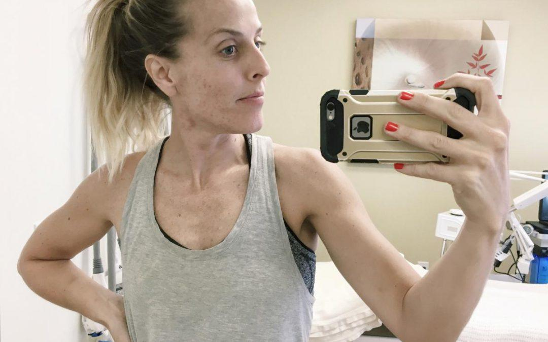 Working on Healing my Acne at CosmetiCare Part Two