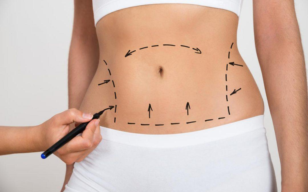 Mommy Makeover 101: Everything You Need To Know About The Popular Plastic Surgery Procedure