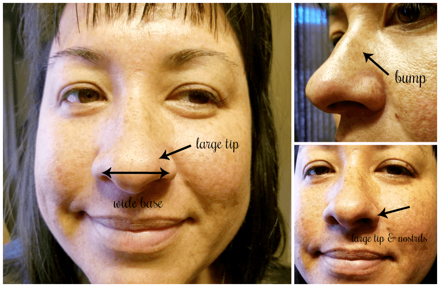 Rhinoplasty Results: 3 Months After Surgery