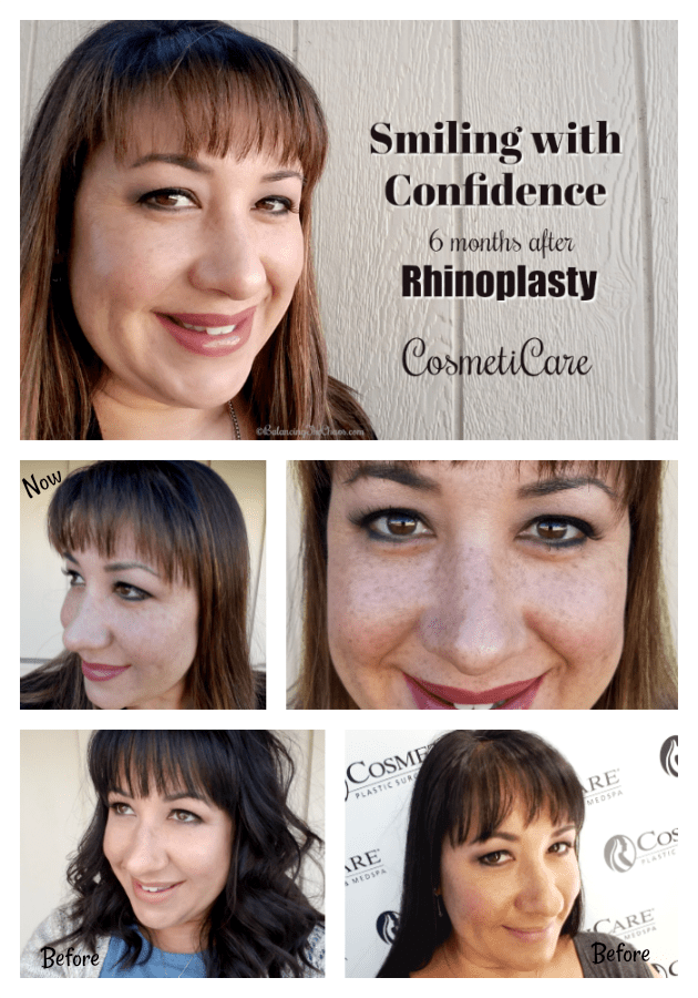 Smiling With Confidence 6 Months After My Rhinoplasty