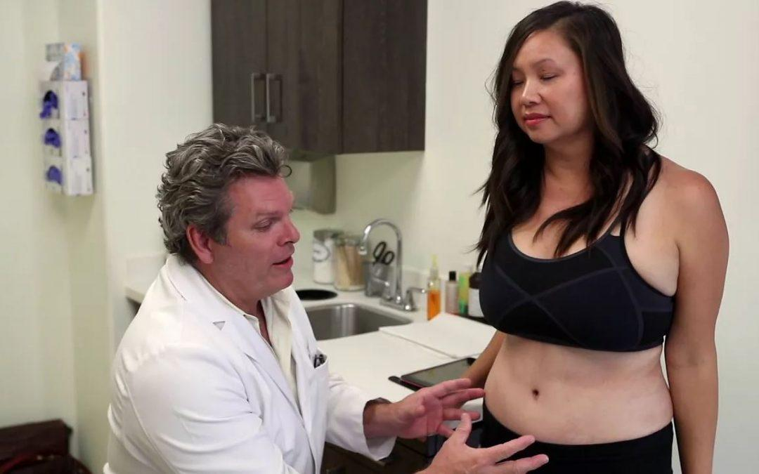 Mary's Six Week Post Liposuction Video
