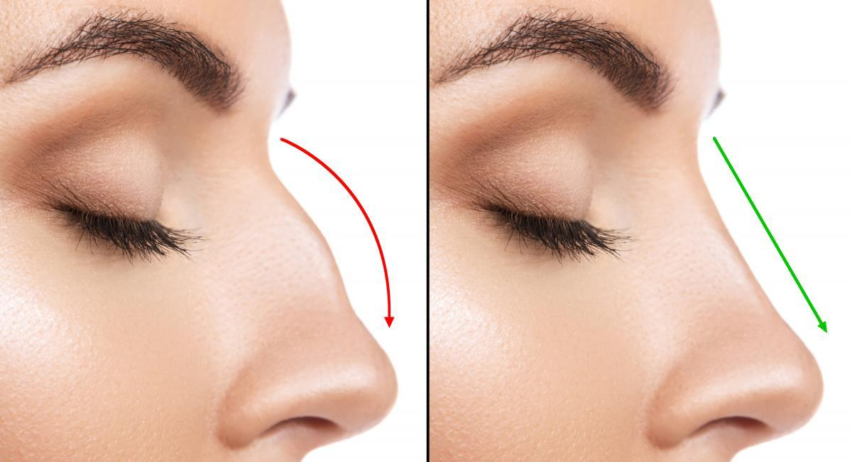 Facial Profile Rhinoplasty