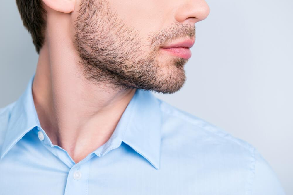 Men's Double Chin Kybella