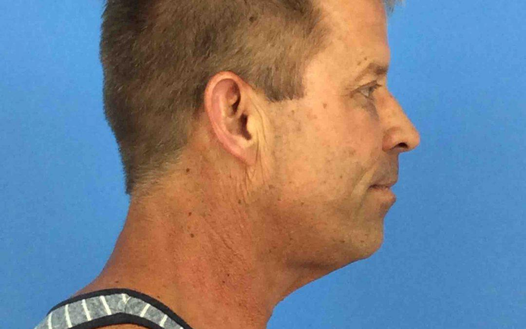 Before And After Neck Lift Case #90756