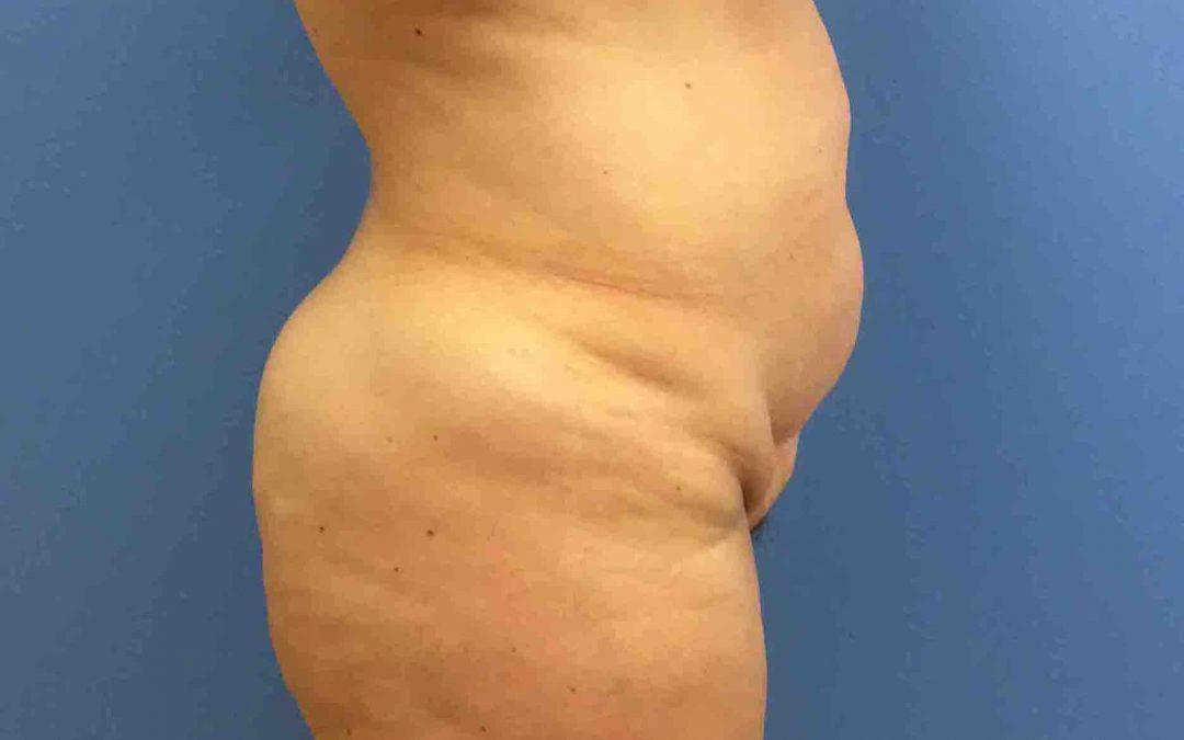 Before And After Abdominoplasty Case #30614