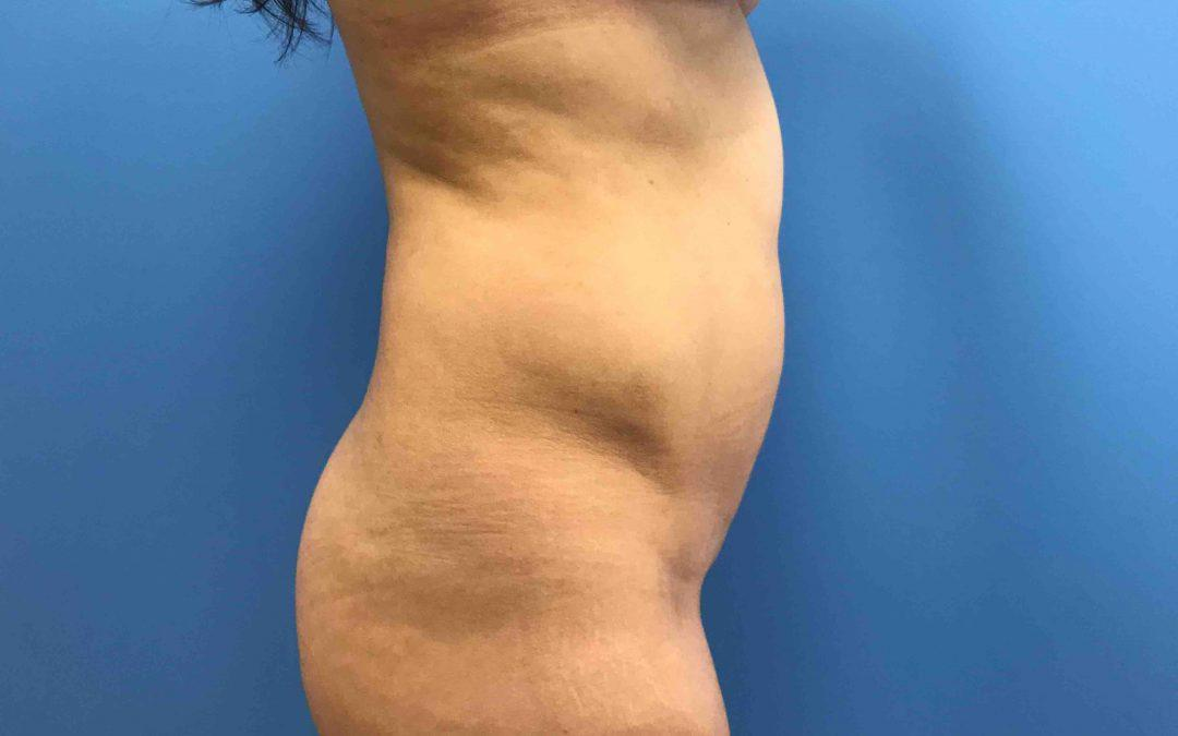 Before And After Liposuction Case #1016987