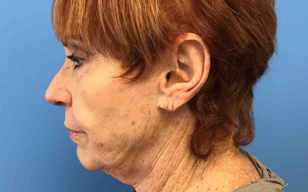 Before And After Facelift, Neck lift Case #1004670