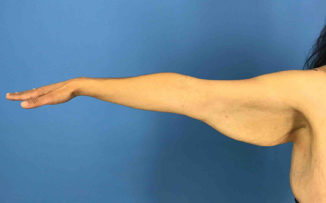 Before and After Brachioplasty (Arm Lift) Case #1003447