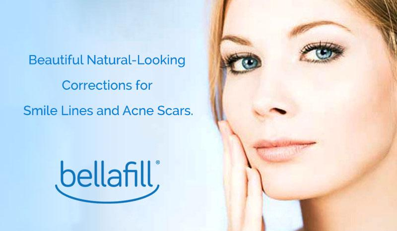 Bellafill Acne Scar Treatment