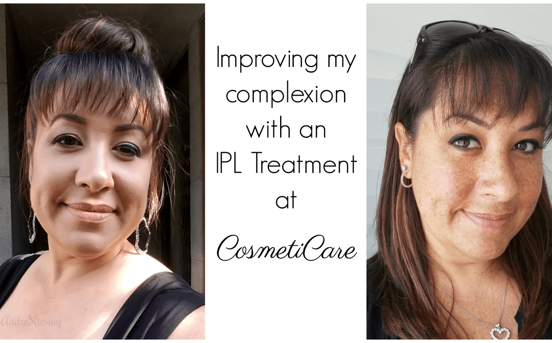 Improving my Complexion with an IPL Treatment