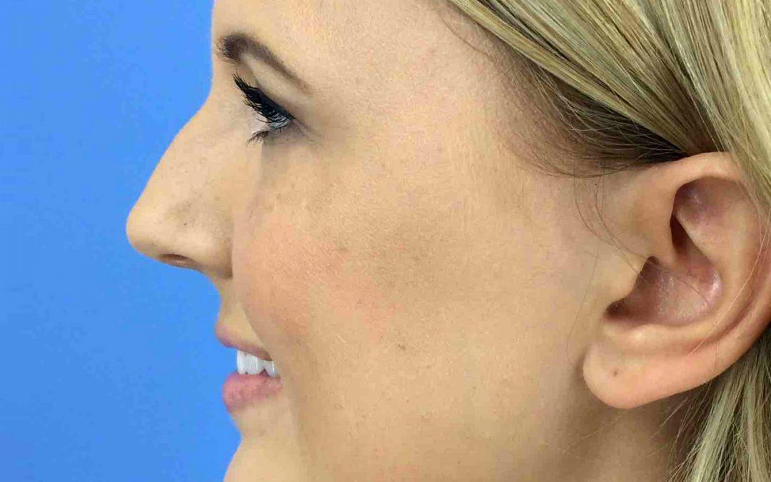 Before and After Rhinoplasty Case #1004349