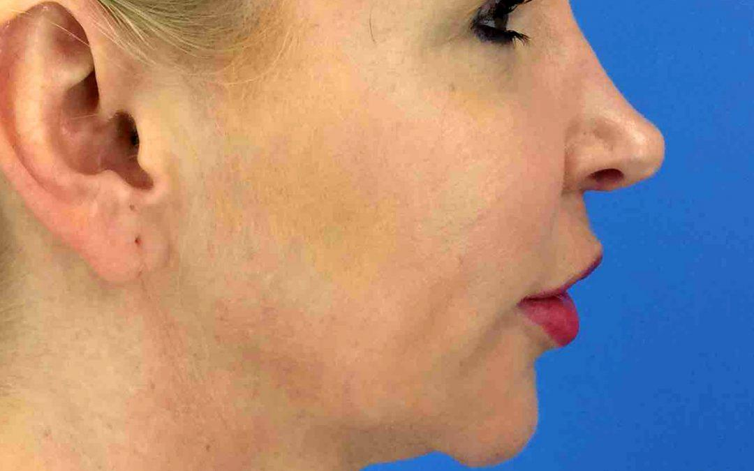 Before and After Chin Augmentation Case #1022705