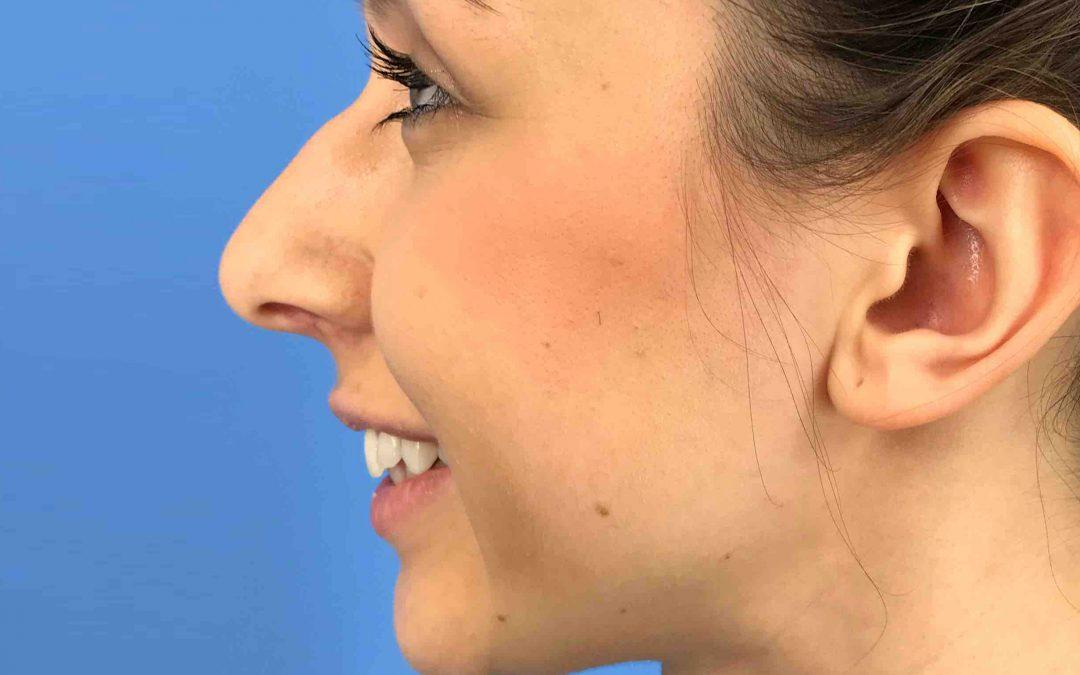 Before and After Rhinoplasty Case #1026907
