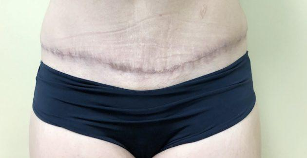 Tummy Tuck Scar Before ClearLift