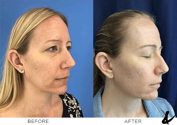Before and after Laser
