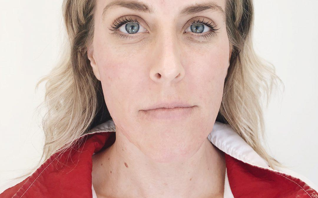 Getting a Hydrafacial at Cosmeticare