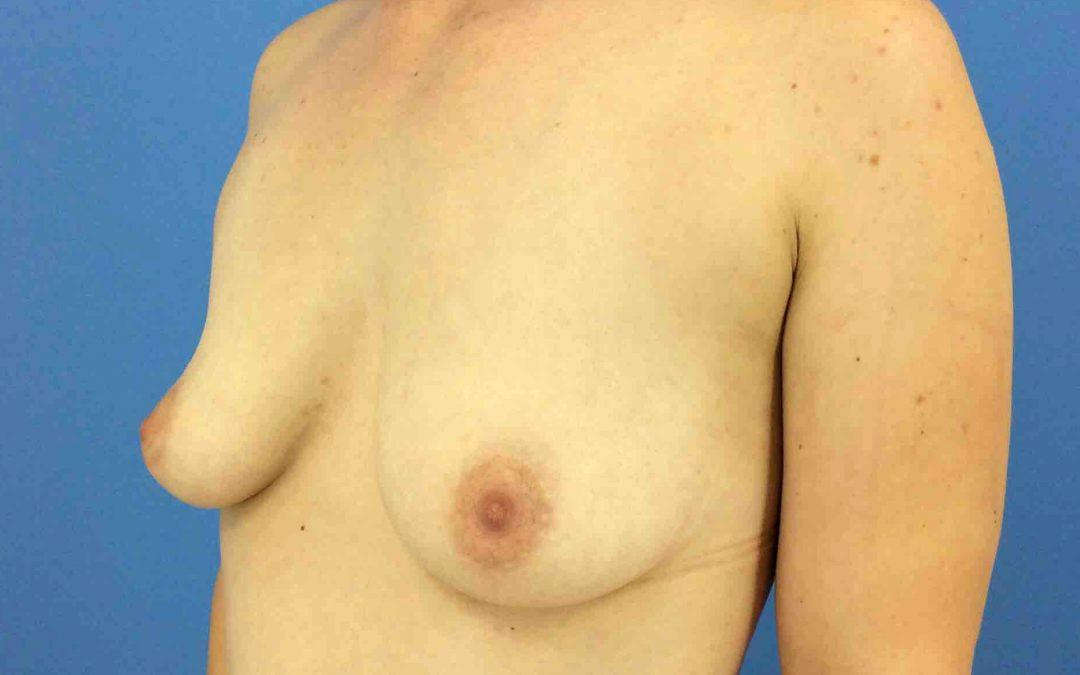 Before and After Breast Augmentation Case #1022825
