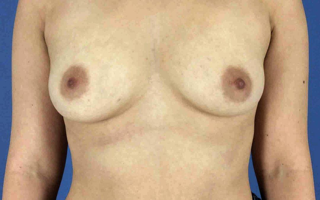 Before and After Breast Augmentation Case #1028005