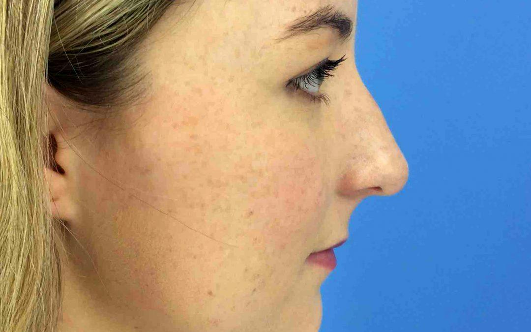 Before and After Chin Augmentation Case