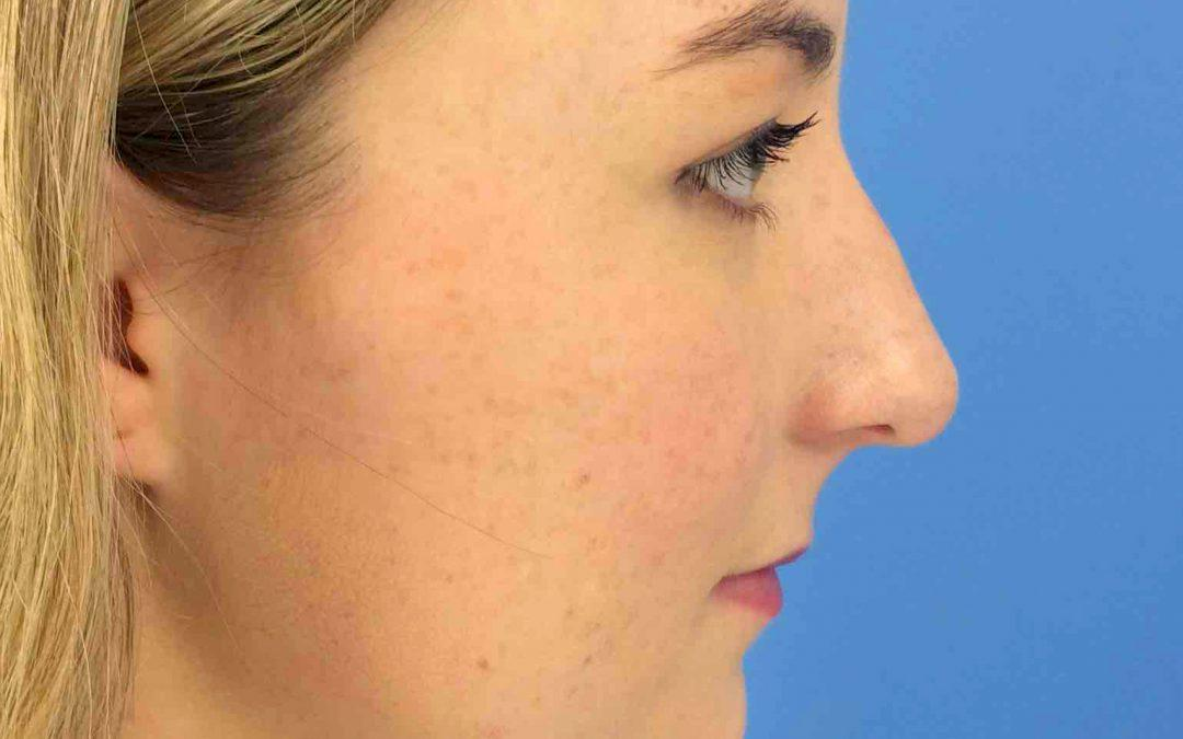 Before and After Rhinoplasty Case
