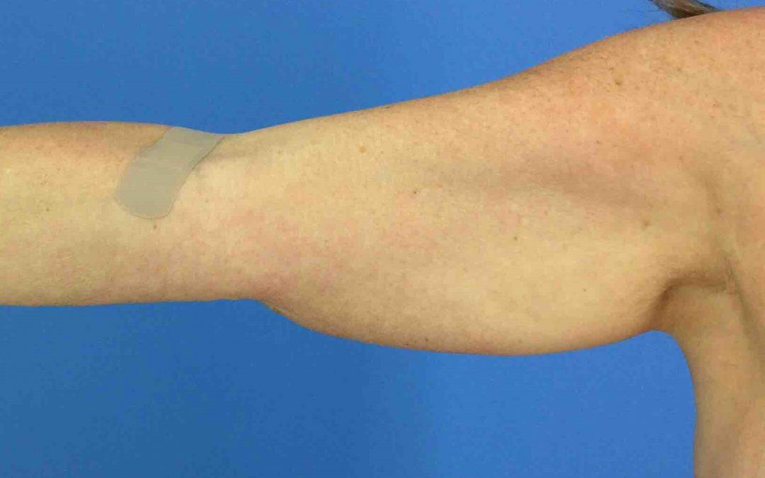 Before and After Brachioplasty (Arm Lift) Case #1023559