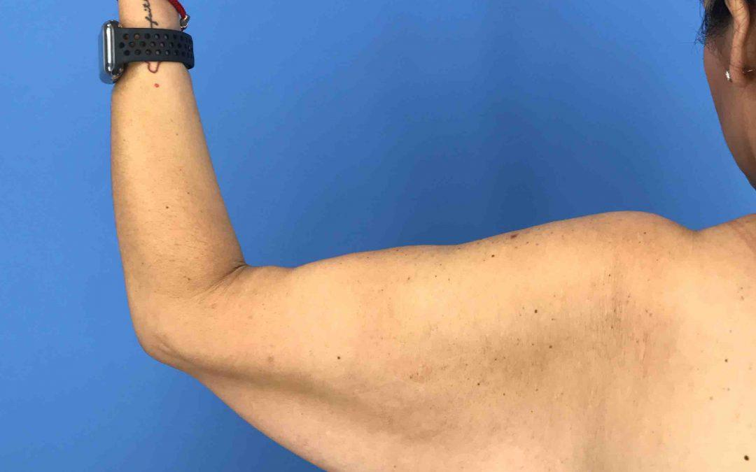 Before and After Brachioplasty (Arm Lift) Case #1025283