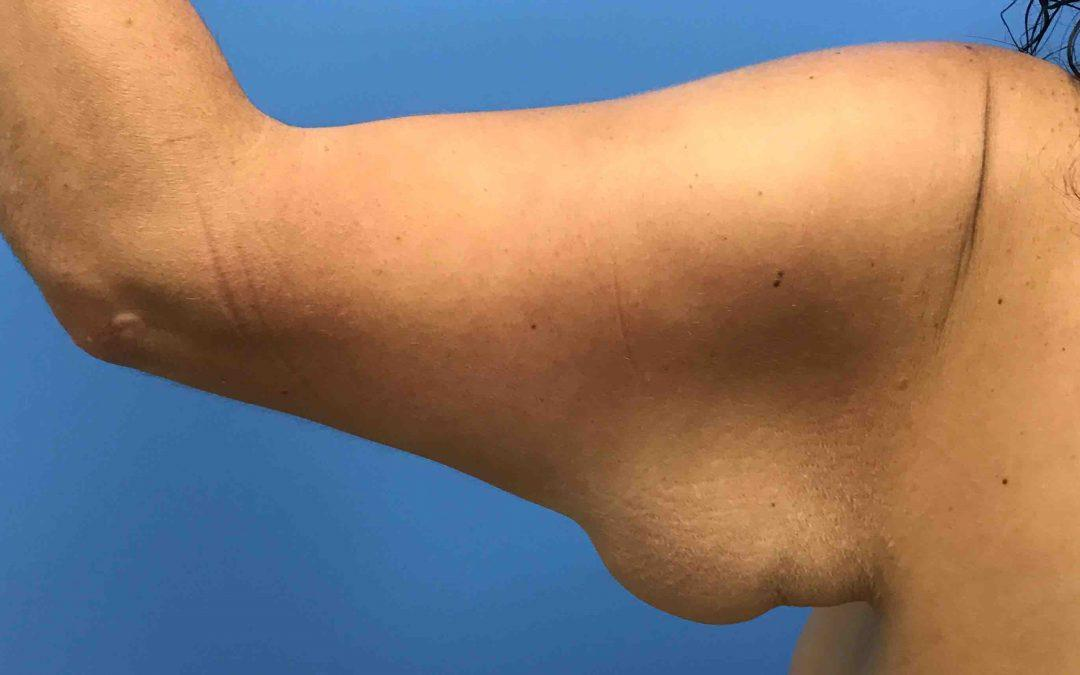 Before and After Brachioplasty (Arm Lift) Case #1029998