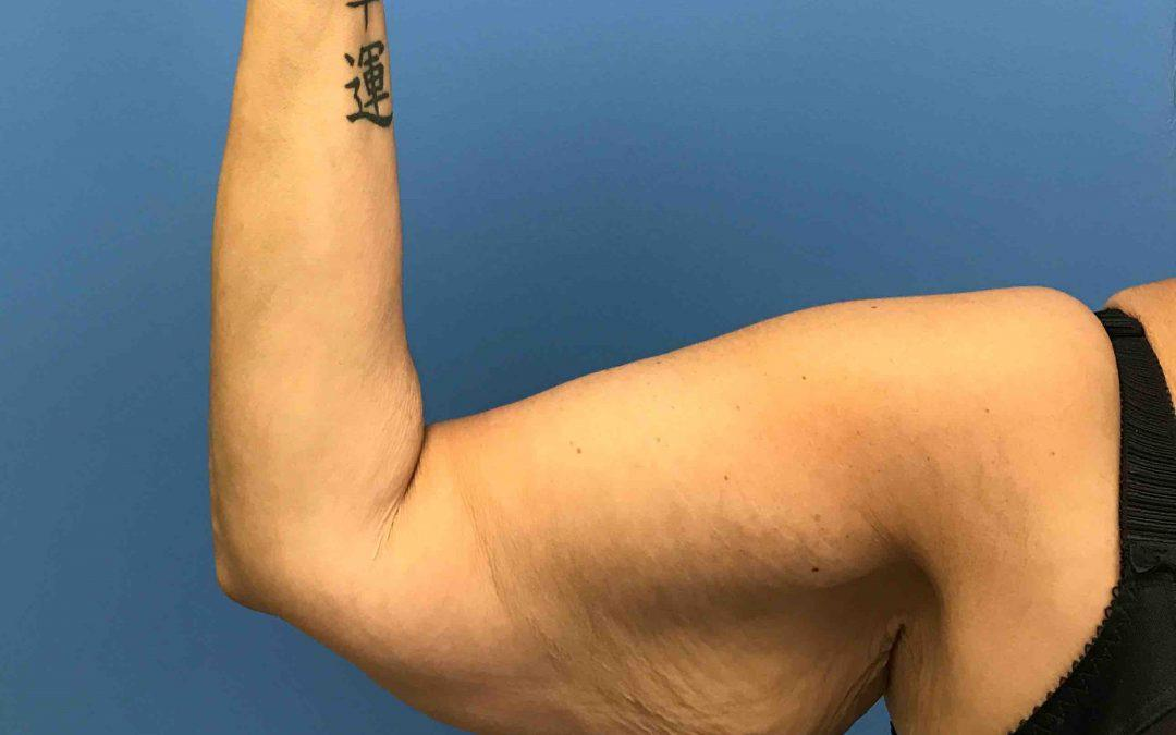 Before and After Brachioplasty (Arm Lift) Case #1030412