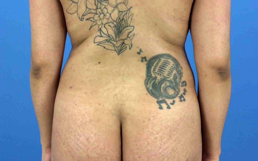 Before and After Brazilian Butt Lift Case #6753421