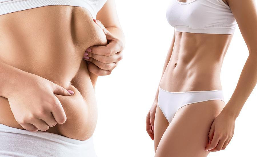How CoolSculpting Works in Destroying Your Body Fat