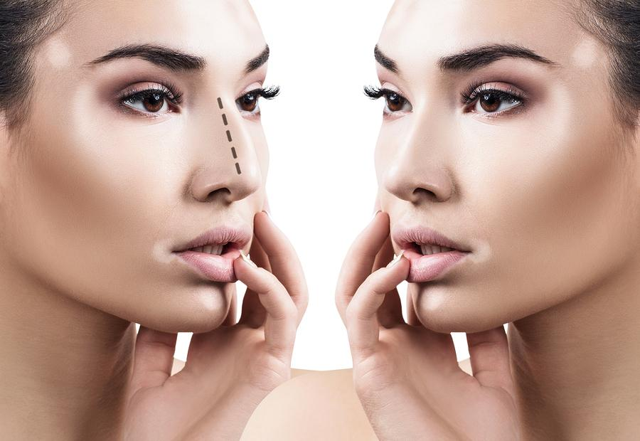 How Rhinoplasty Can Change Your Life
