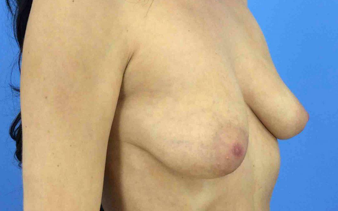Before and After Breast Augmentation Case #1020895