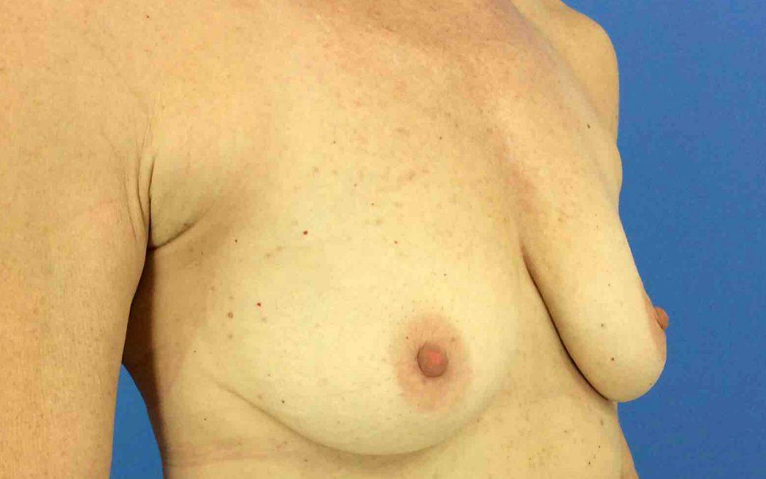 Before and After Breast Augmentation Case #1023071