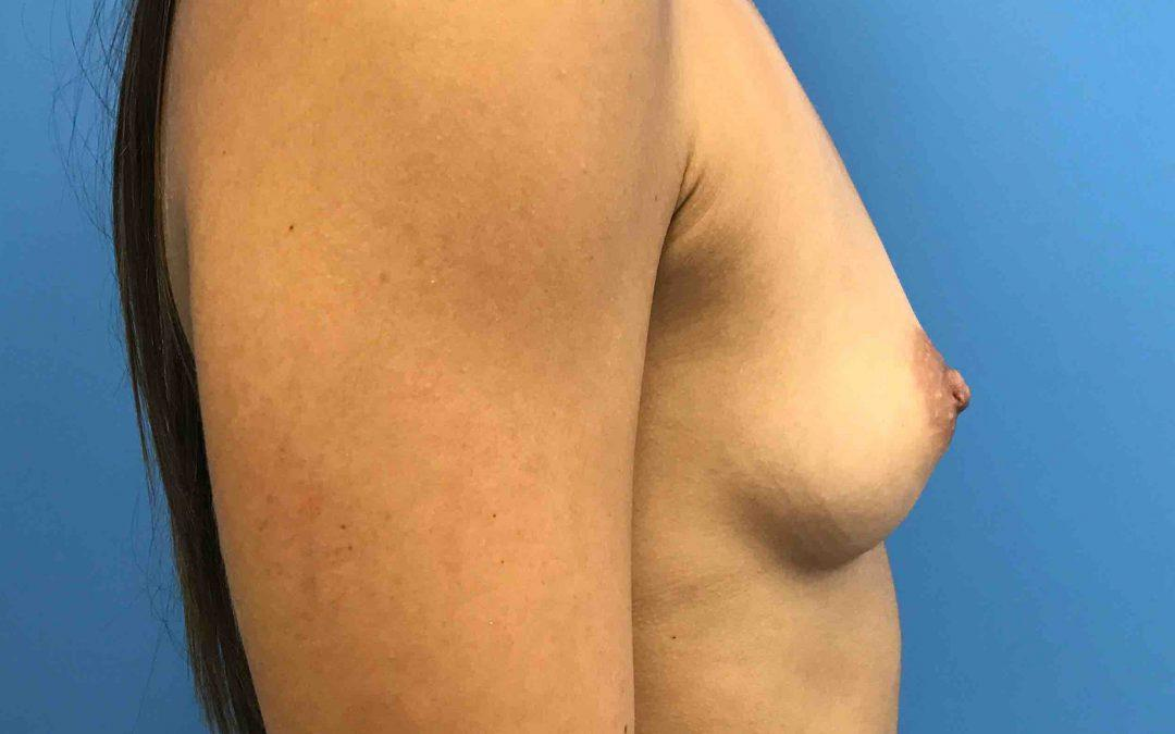 Before and After Breast Augmentation Case #1030979