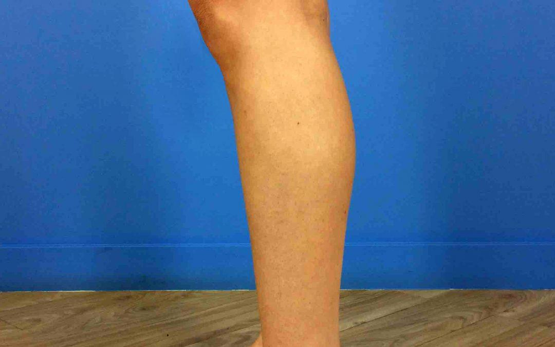 Before and After Calf Implant Case #1021825