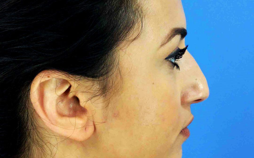 Before and After Rhinoplasty Case # 1021212