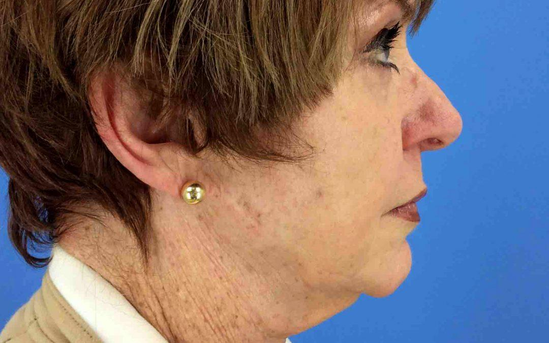 Before and After Neck Lift Case #1004670