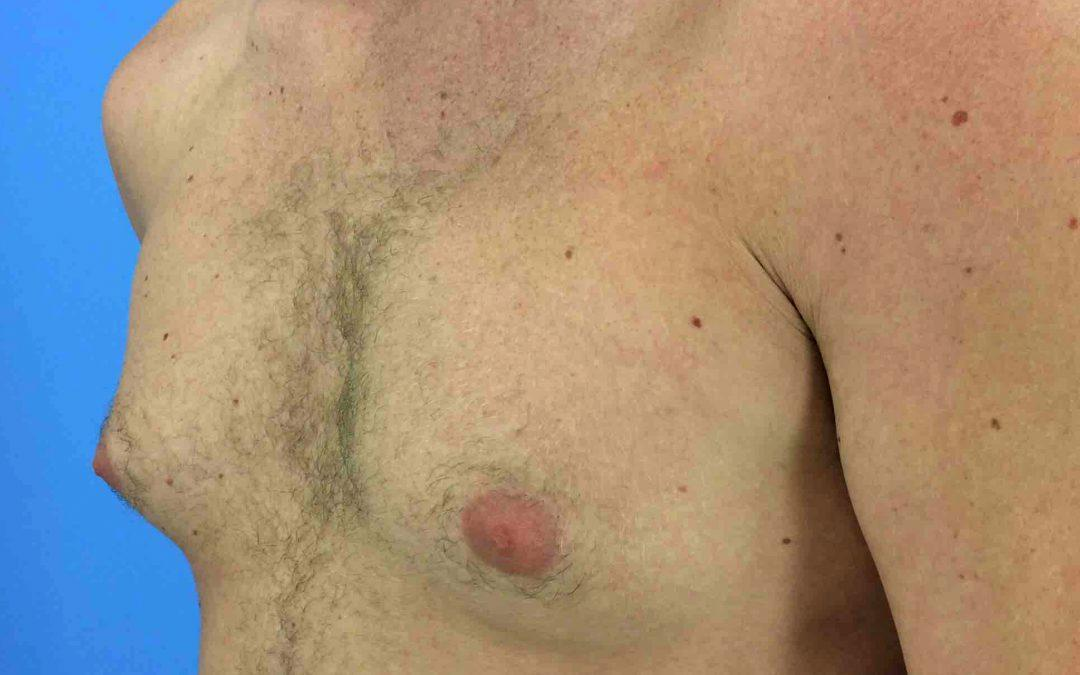 Before and After Gynecomastia Case #31510