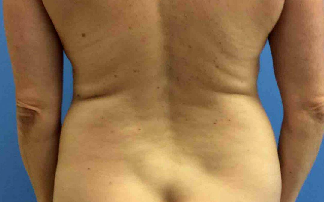 Before and After Liposuction Case #1009829