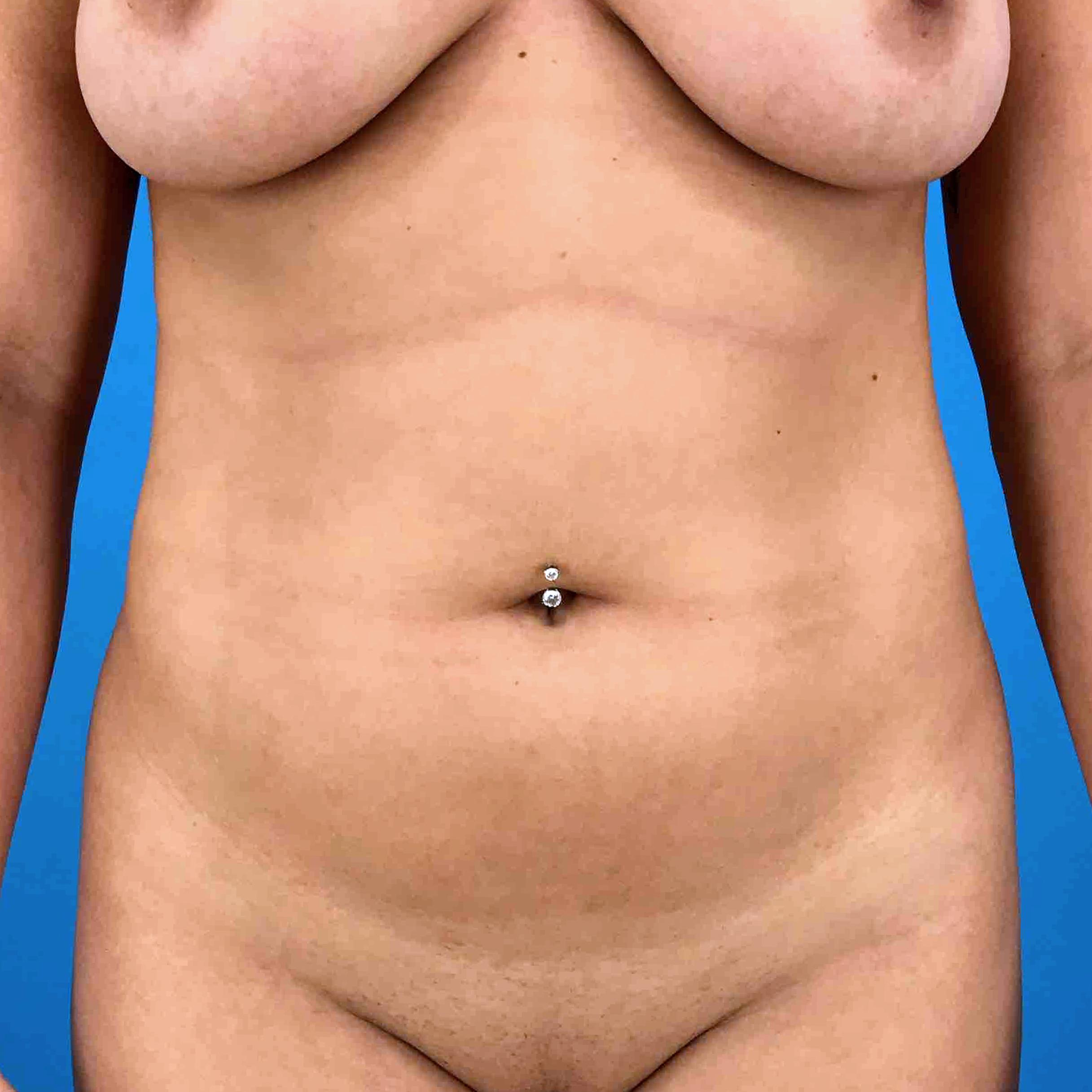 Before and After Liposuction Case #1024432 - CosmetiCare