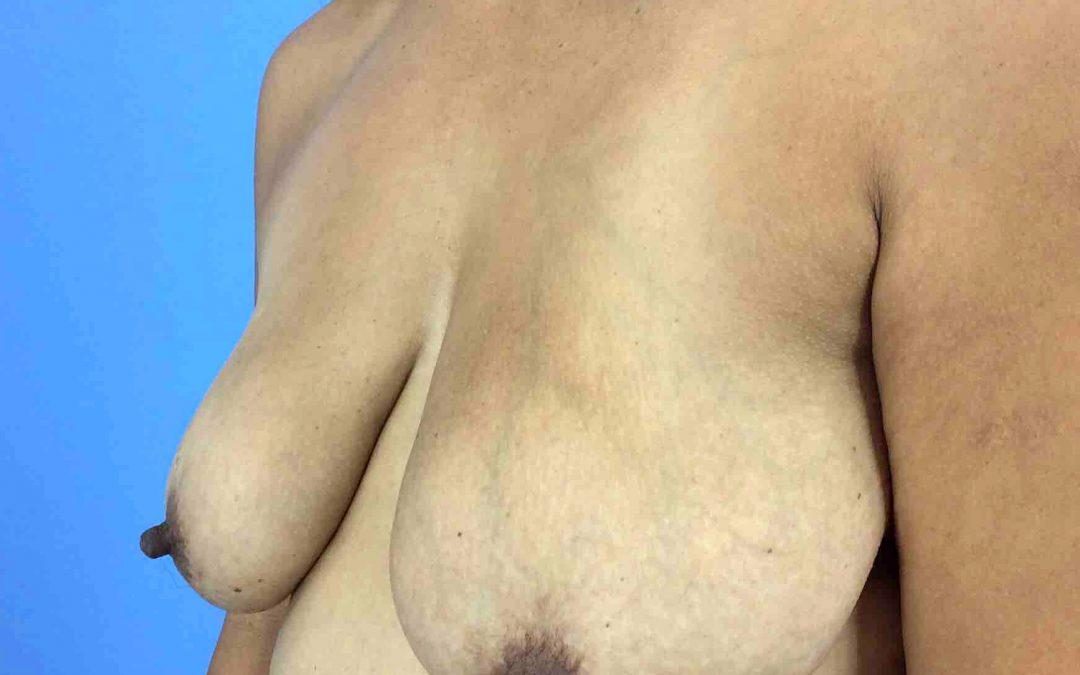 Before and After Breast Lift (Mastopexy) Case #1022275