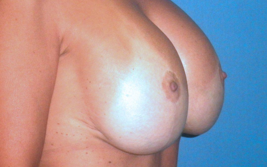 Before and After Breast Lift (Mastopexy) Case #25702