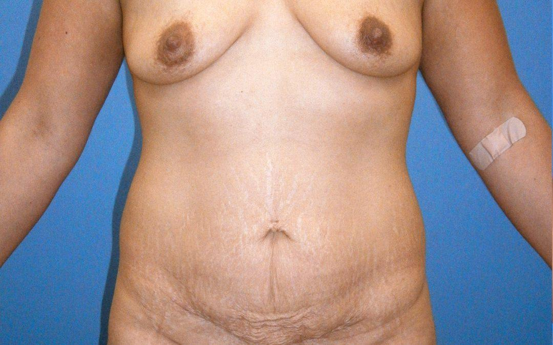 Before and After Mommy Makeover Case #1003749