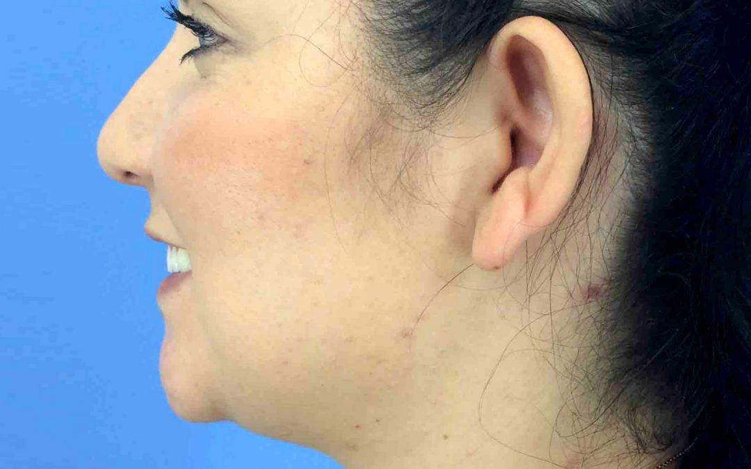 Before and After Facial Liposuction Case #1027378