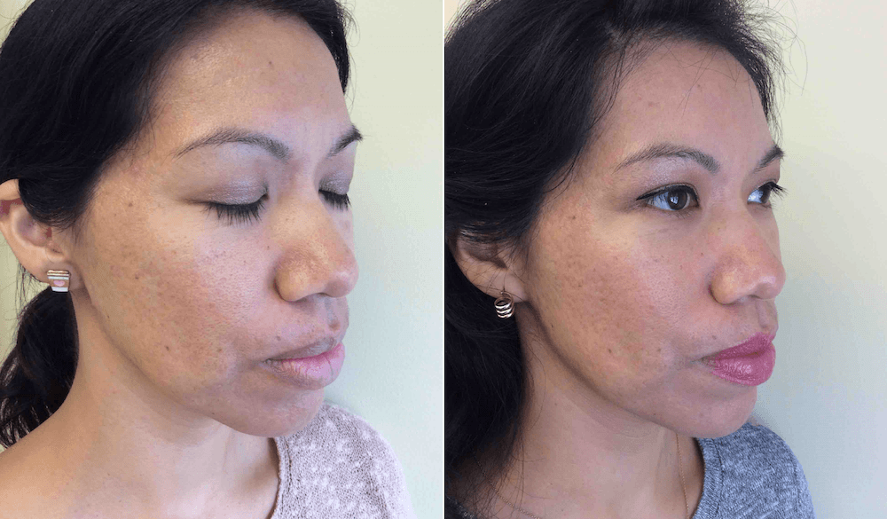 Microneedling with PRP Results After My Second Treatment
