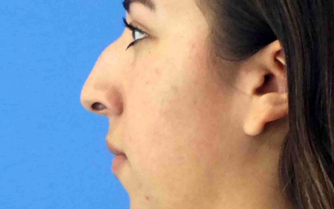 Before and After Rhinoplasty Case #1017665