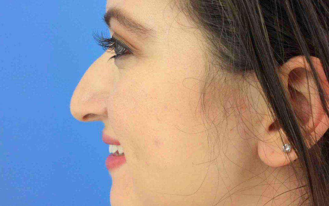 Before and After Rhinoplasty Case #1022048