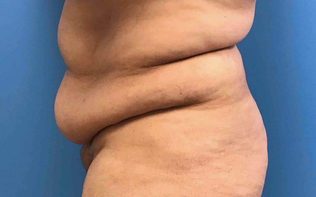 Before and After Abdominoplasty Case #1017523